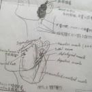 病気体験談~耳下腺腫瘍②「良性・・・でも悪性?」